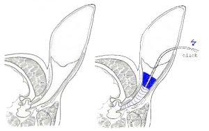 Schematische Darstellung eines Hörtests